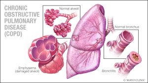 COPD-