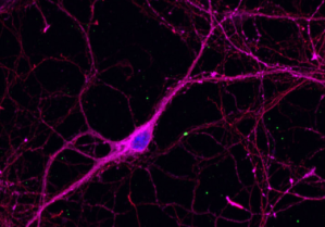 duff_neuron