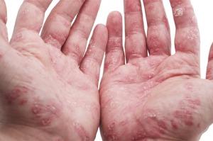psoriatic-arthritis1