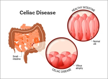 celiac_illustration