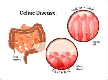 celiac_illustration