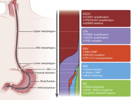 gastroesophageal-carcinoma