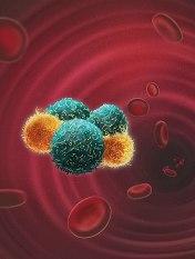 Tumorzellen_Neutrophile