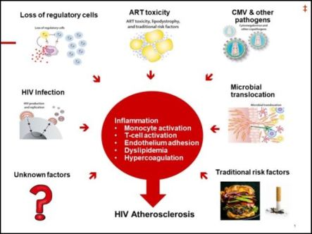cardiovascular-issues-in-treating-patients-with-HIV_1