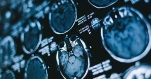 cervellorm