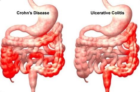 crohns-ulcerative-colitis