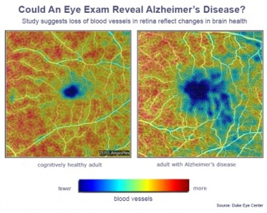 eye_scan_and_alzheimers