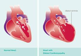 cardiomiopatie