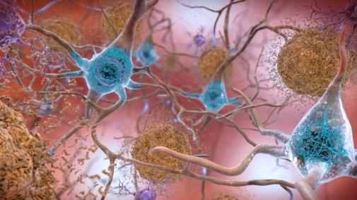 MIT-Alzheimer's-Genes