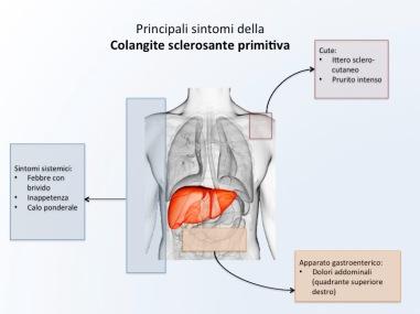 colangite_sclerosante_primitiva