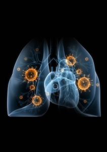Community_Acquired_Pneumonia