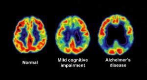 PET-Alzheimer