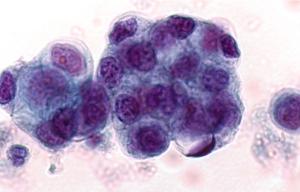 pancreas-cancer
