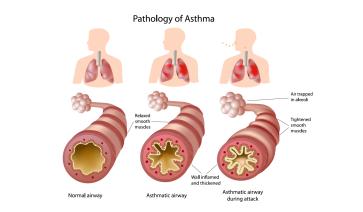 Pathology asthma